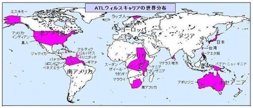 7.ATLのレトロウイルス(HTLV) - 日本人の起源