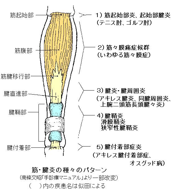 ケルバンの腱炎の理学療法的治療