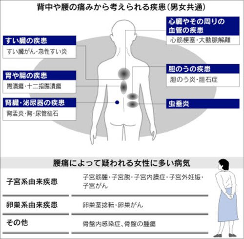 背中 心筋 梗塞