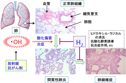 399)水素ガス吸入の間質性肺炎予防効果。 - 「漢方がん治療」を ...