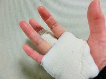 後 バネ 指 手術