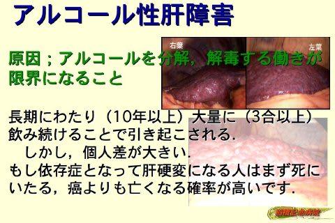 03アルコール性肝障害 生活習慣から来る肝臓病 - 肝臓病と共に生きる人 ...