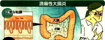 潰瘍性大腸炎「正常な粘膜」