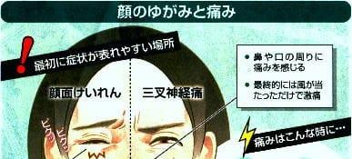 顔のゆがみと痛みの初期症状が表れやすい場所1