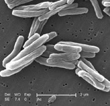 マイコバクテリウム属(Mycobact...