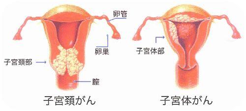 Cervical_body_ca
