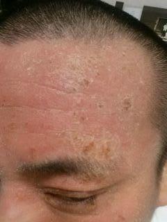 副作用 治し ステロイド 方 顔