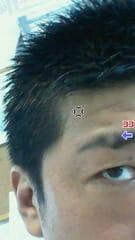 眉毛 円形 脱毛 症