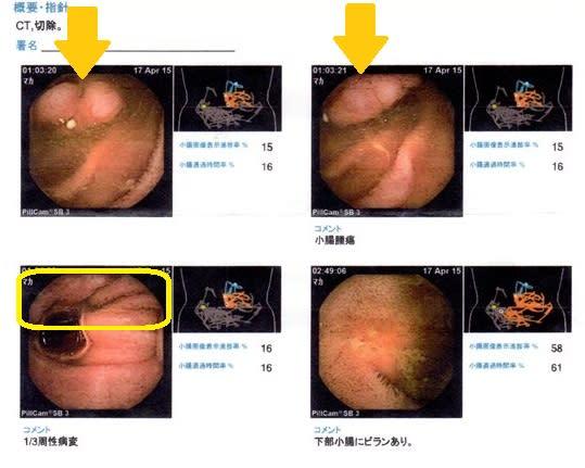 小腸腫瘍のお勉強 - 旅行、とき...