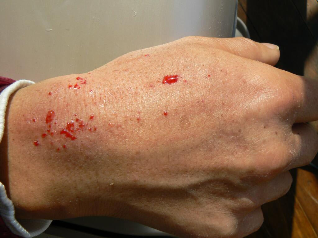 how to tell if contact dermatitis is infected