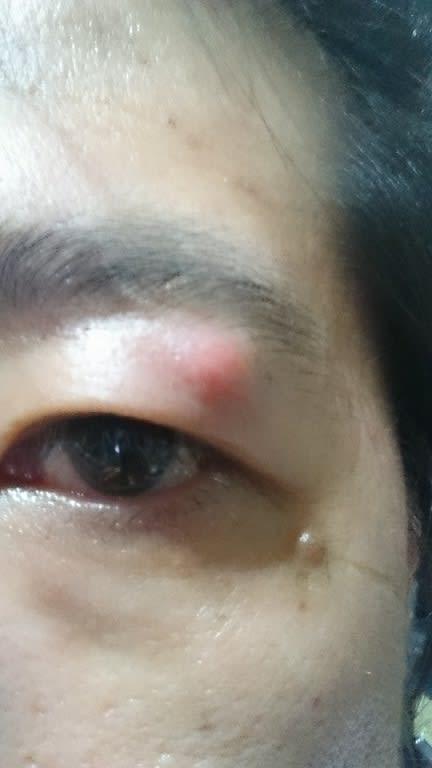 目 の 上 の たんこぶ 「目の上のたんこぶ」とは?意味や使い方をご紹介