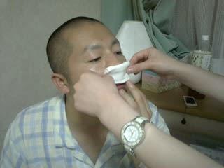 手術 副 ブログ 炎 鼻腔