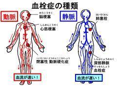 塞栓 肺 症 血栓