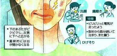 顔のゆがみと痛みの初期症状が表れやすい場所2