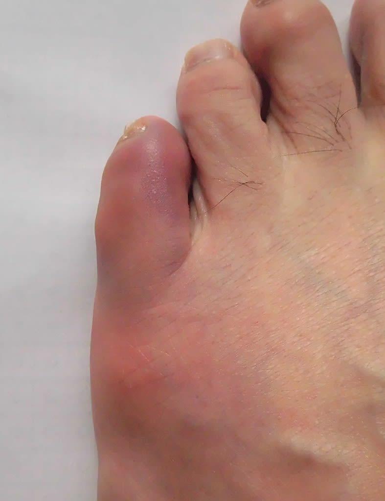 ぶつけ 痛い 小指 た
