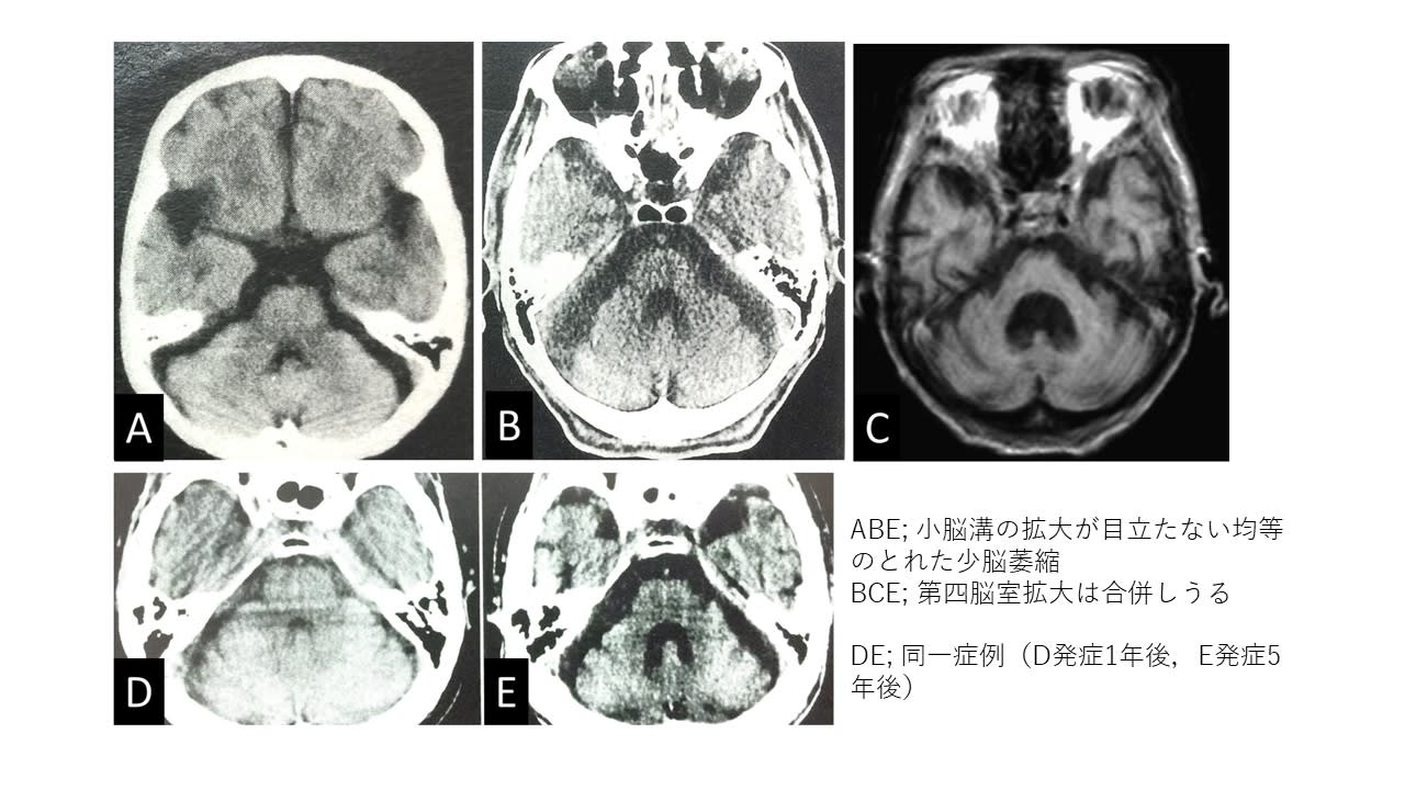 アルコール性脳障害の神経病理 ―一次性アルコール性認知症は …