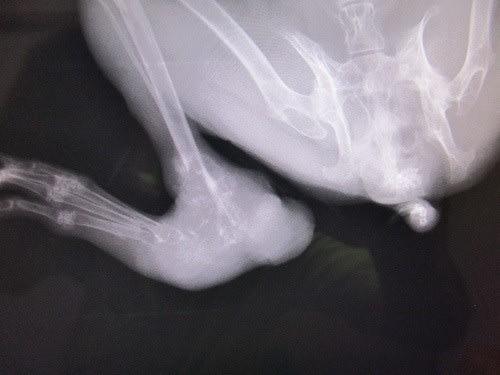 肉腫 ブログ 骨 骨肉腫は何が原因で発症するの?~関連する病気や危険因子とは~