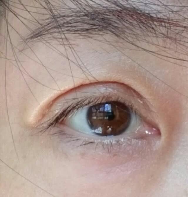 保険適用)眼瞼下垂手術経過レポート 術後10日目 , 超私事!葉月