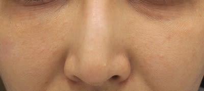 汗 嚢腫 エクリン 夏になるとお肌に無数のぶつぶつが。エクリン汗嚢腫と戦う。