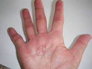 腫 肉芽 血管 毛細 性 拡張