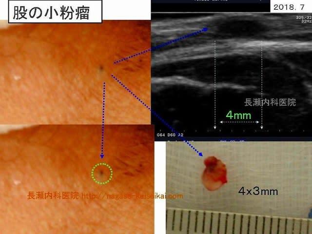 粉瘤(ふんりゅう)、表皮嚢腫(ひょうひのうしゅ)、アテローマ