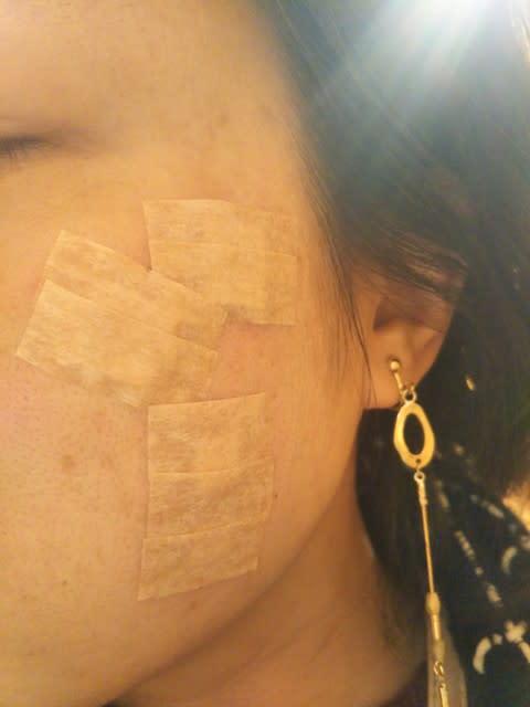 イボ 科 皮膚 顔 の 取り