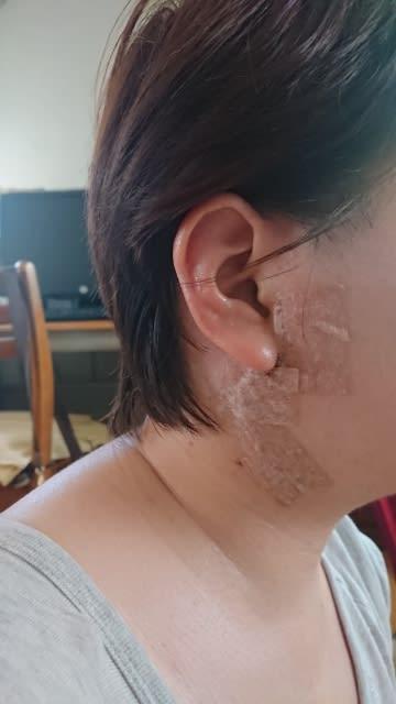 腺 耳 腫瘍 下