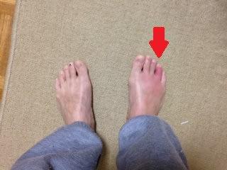 足 の 指 痛い 薬指