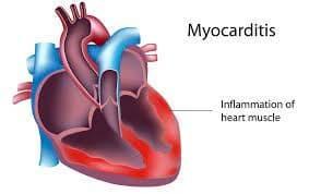 心筋炎 Myocarditis【言葉の説明】