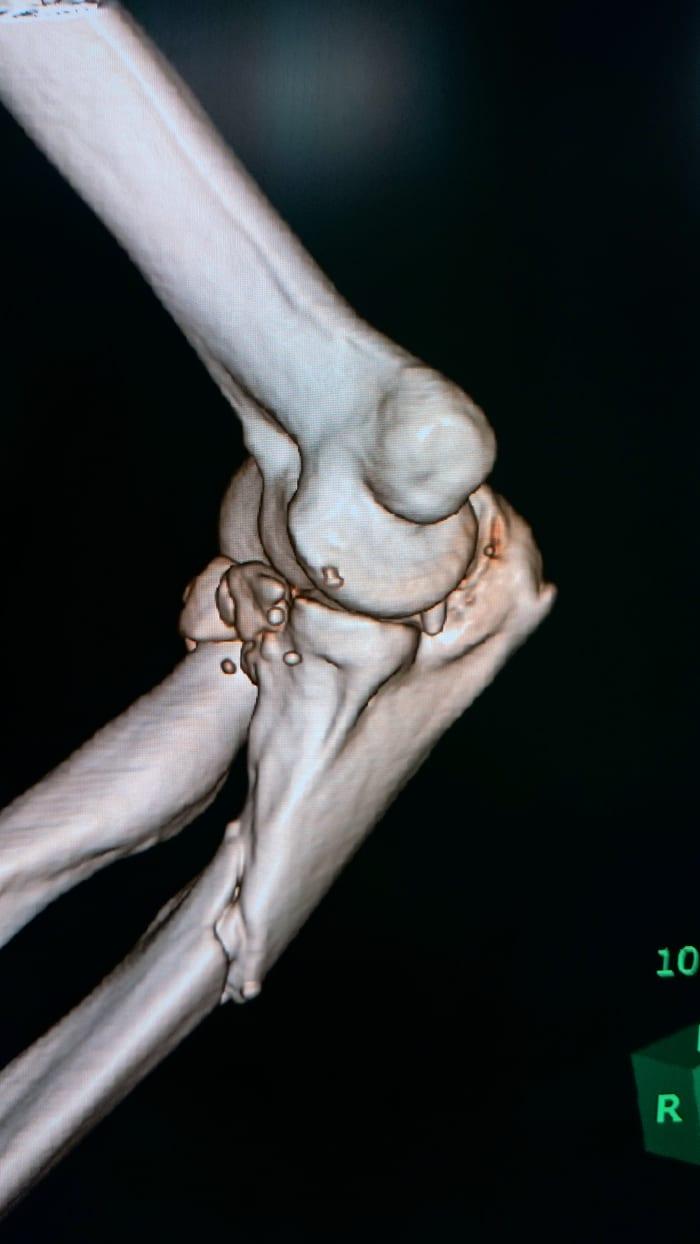 骨の一部が皮膚を突き破った場合は複雑骨折あつかい - 何しろ1日1 ...