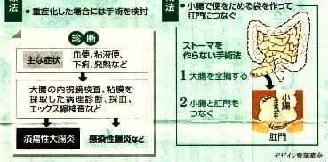 潰瘍性大腸炎「治療法&手術法」