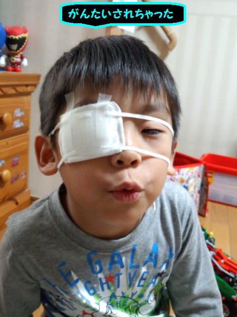 うつるウィルス性の結膜炎だといけないので、念のため眼帯も購入。