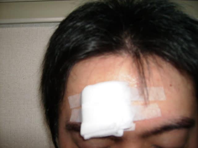 目 の 上 の たんこぶ 目の上の瘤 - 故事ことわざ辞典