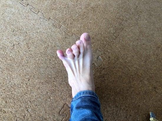 骨折 足 テーピング 指