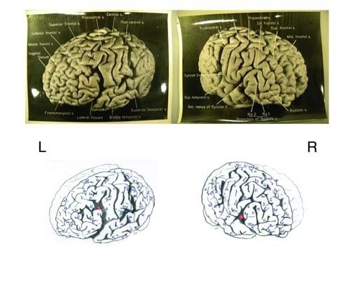 """アインシュタインは""""脳""""が違いま..."""
