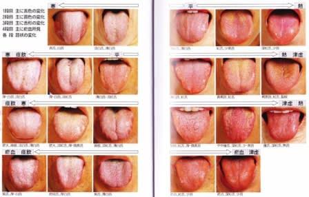 舌苔と口臭 - あらカン