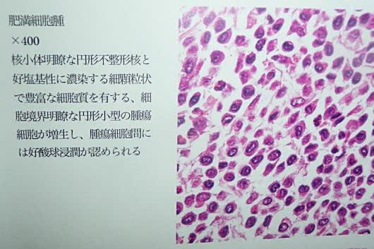 肥満細胞腫の病理検査結果 - ☆あ...