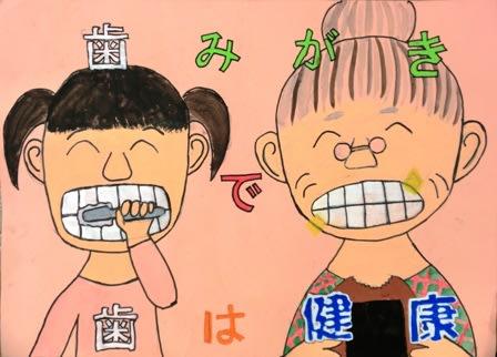 予防 ポスター 虫歯