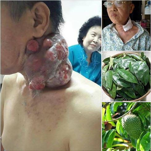 がんを退治!? タイの民間療法 ...