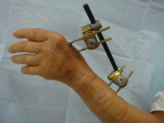 創外固定のピン刺入部の処置 - ...