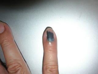 内出血 剥がれる 爪