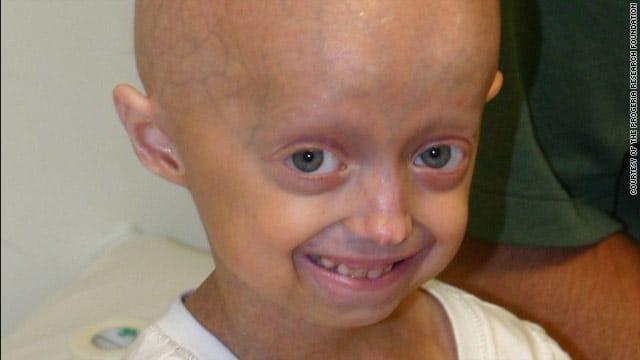 Megan Nighbor ちゃん(10才)は、抗がん薬がこの急速に進行する早老性疾患の治療薬となり得るかどうかを調べるための臨床試験に参加している。