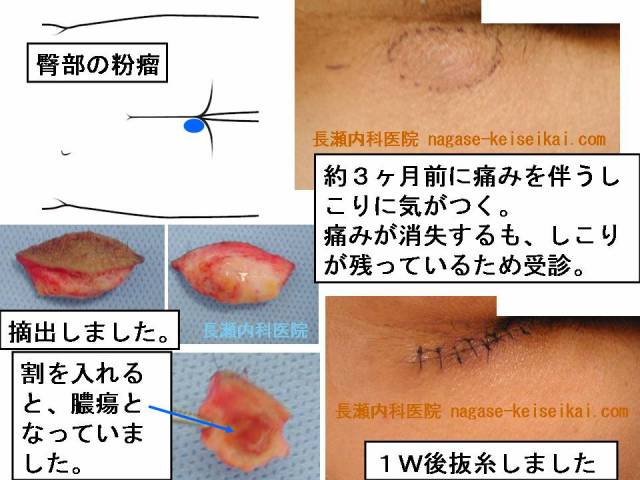 臀部(おしり)の粉瘤