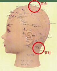 の 痛み 頂部 頭 頭の痛み、普通の内側の頭痛ではなく、外から押すと痛い場合