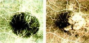 加齢黄斑変性の網膜画像