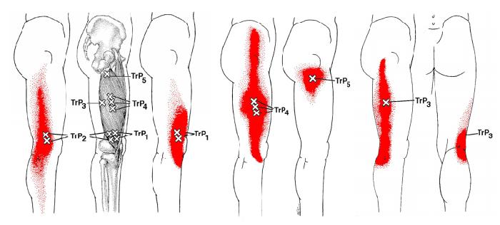 膝の外側が痛い=外側広筋のトリガーポイント由来の疼痛 ...