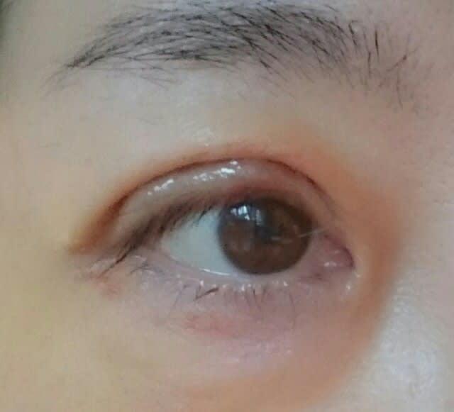 保険適用)眼瞼下垂手術経過レポート 術後5日目 , 超私事!葉月の