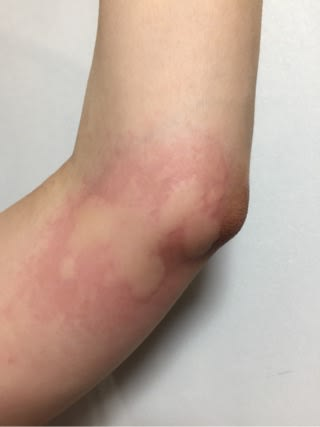 蚊 に 刺され る 腫れる 蚊に刺され、腫れてパンパン!ひどくなる理由は?