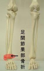 関節 骨折 果 足 外 足関節骨折(腓骨外果骨折含む)を解説!クリニカルパスも紹介|~リハ事典+~ リハビリ(理学療法)の総合コンテンツ