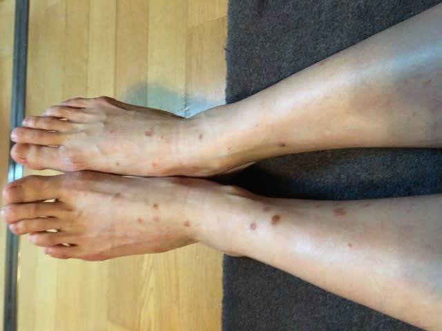 きっかけとなる皮膚炎である原発巣ができてからしばらく経って、その周りから手足や胴体、顔面など身体中のどこかに1mm程度の小さな散布疹が生じます。
